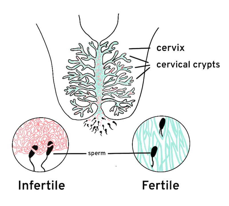 cervical mucus relationship with sperm